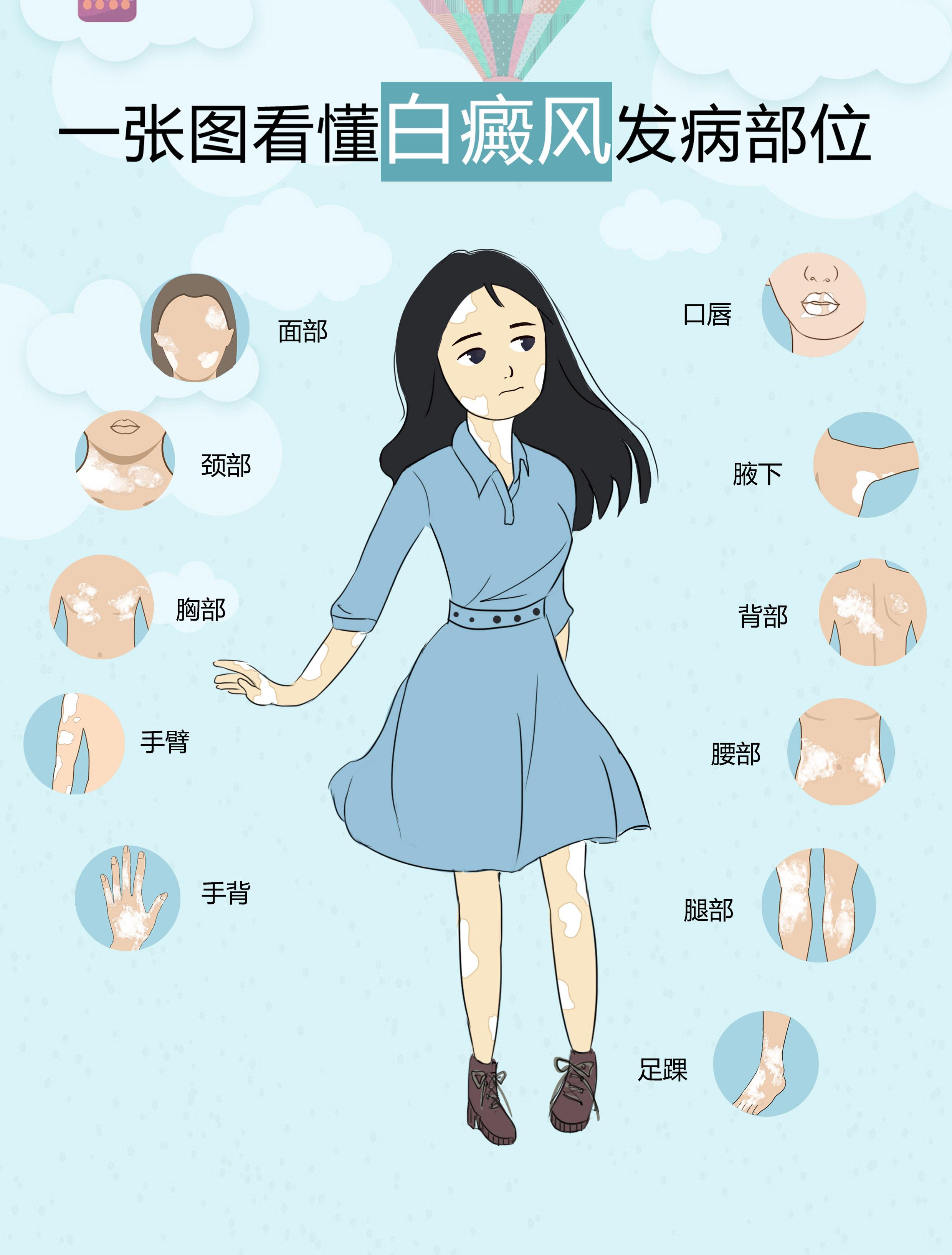 白癜风有哪些比较常见的发病部位呢
