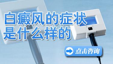 昆明好的皮肤医院:白癜风疾病有哪些特点