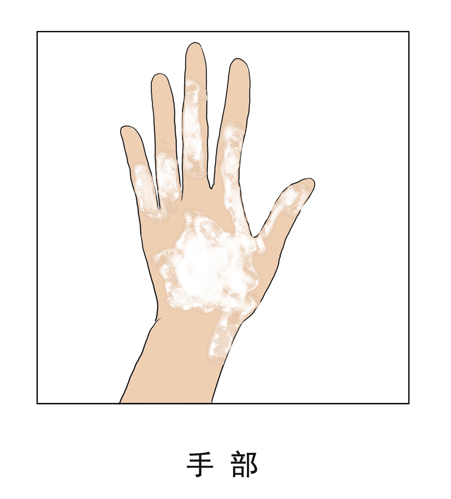手部长白斑的病因有哪些