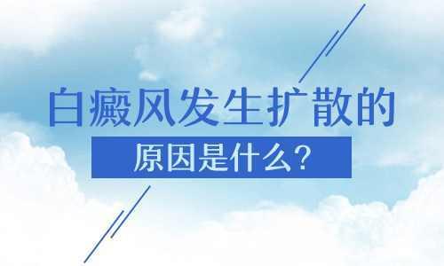 昆明看白癜风医院:白癜风开始扩散的原因有哪些呢?