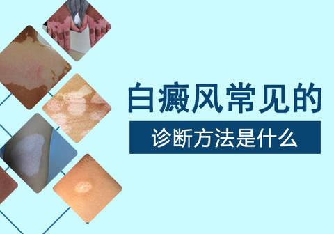 昆明<a href=http://www.ljsmydl.com/bdfzl/507.html target=_blank class=infotextkey>白癜风治疗</a>好医院