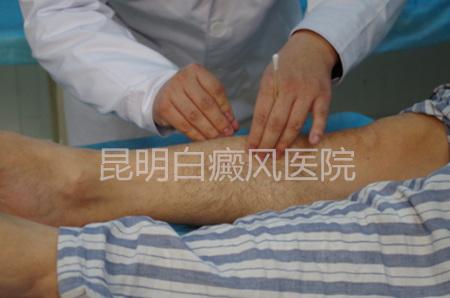 白癜风初期治疗