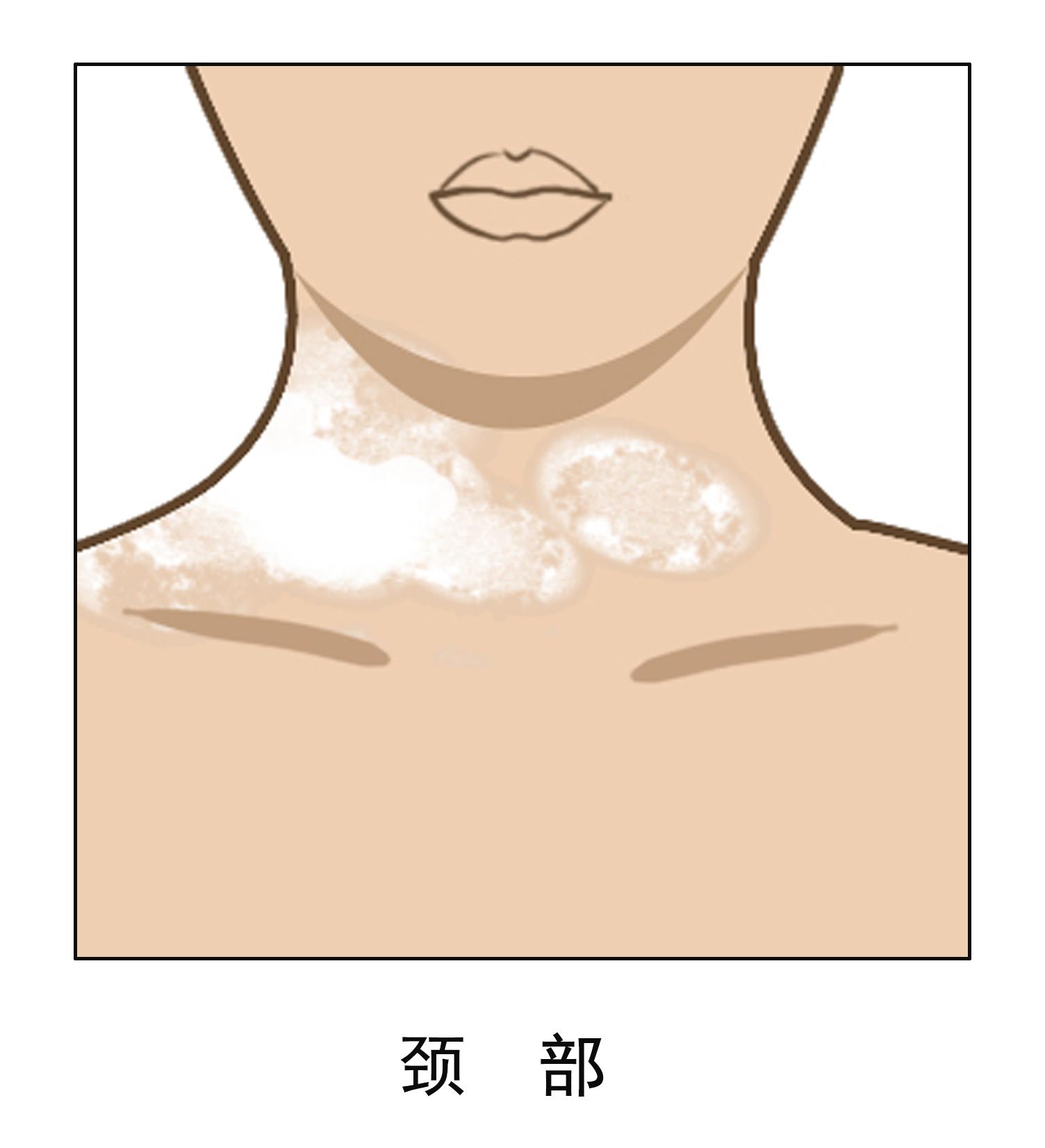 颈部白癜风怎么治疗好