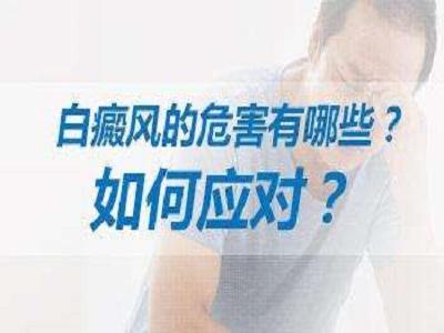 怎么治疗腰部的白癜风