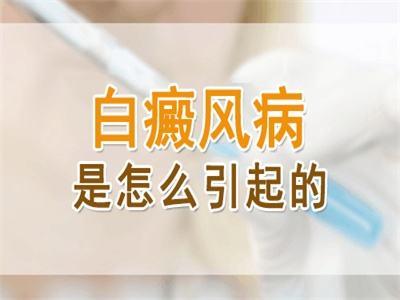 昆明与<a href=http://www.ljsmydl.com/bdfzz/ target=_blank class=infotextkey>白癜风的症状</a>类似的皮肤病有哪些